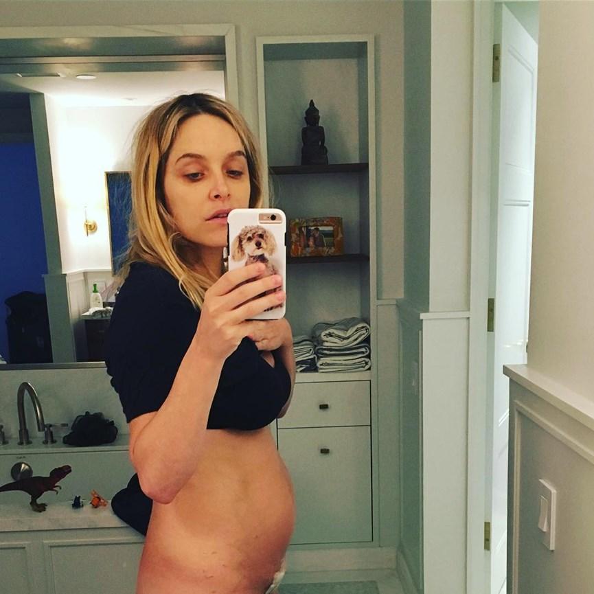 Κοιλιά μετά την καισαρική